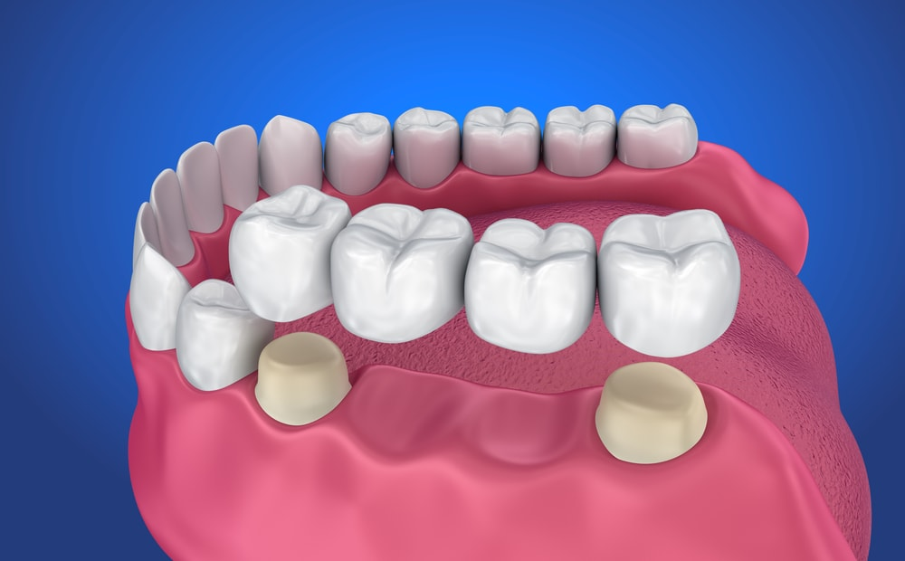 Four units dental bridge