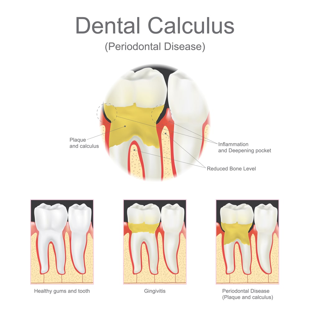 Stages gum disease : gingivitis, periodontal disease with creation of a deepening pocket.