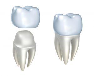 Image of a dental crown
