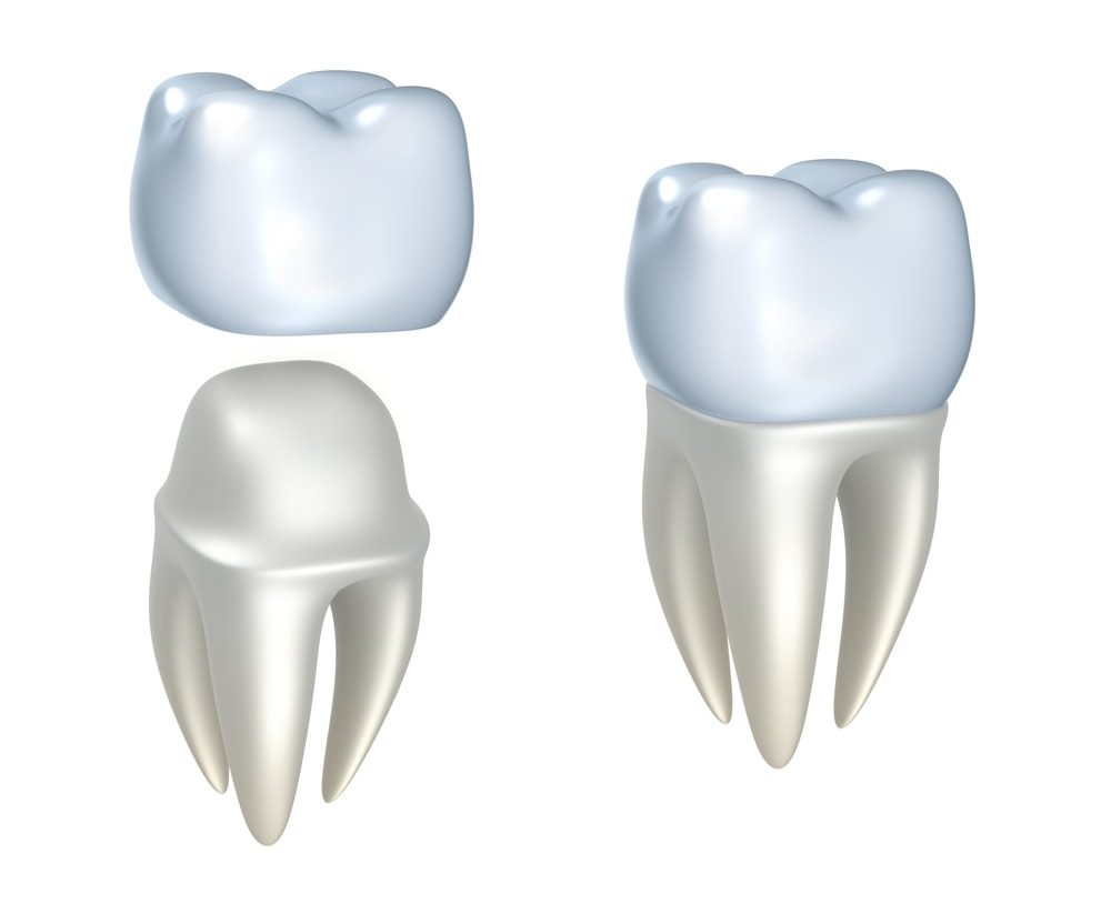 Image of a dental crown