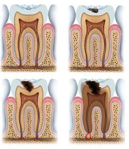 Images showing gradual process of tooth cavity formation