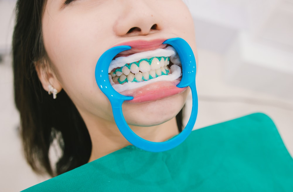 Patient undergoing in-office teeth whitening. Gums are protected from contact with whitening gel. Cheek retractors are in place