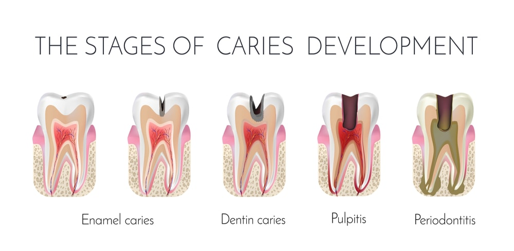 Image showing stages of caries formation : enamel caries, dentin caries, pulpitis and periodontitis