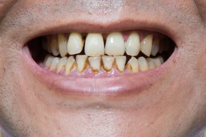 Image a smoker's stained teeth
