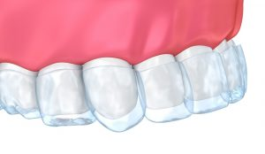 Teeth whitening trays fitting onto frontal upper teeth