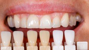 Tooth shade chart sutton place dental associates