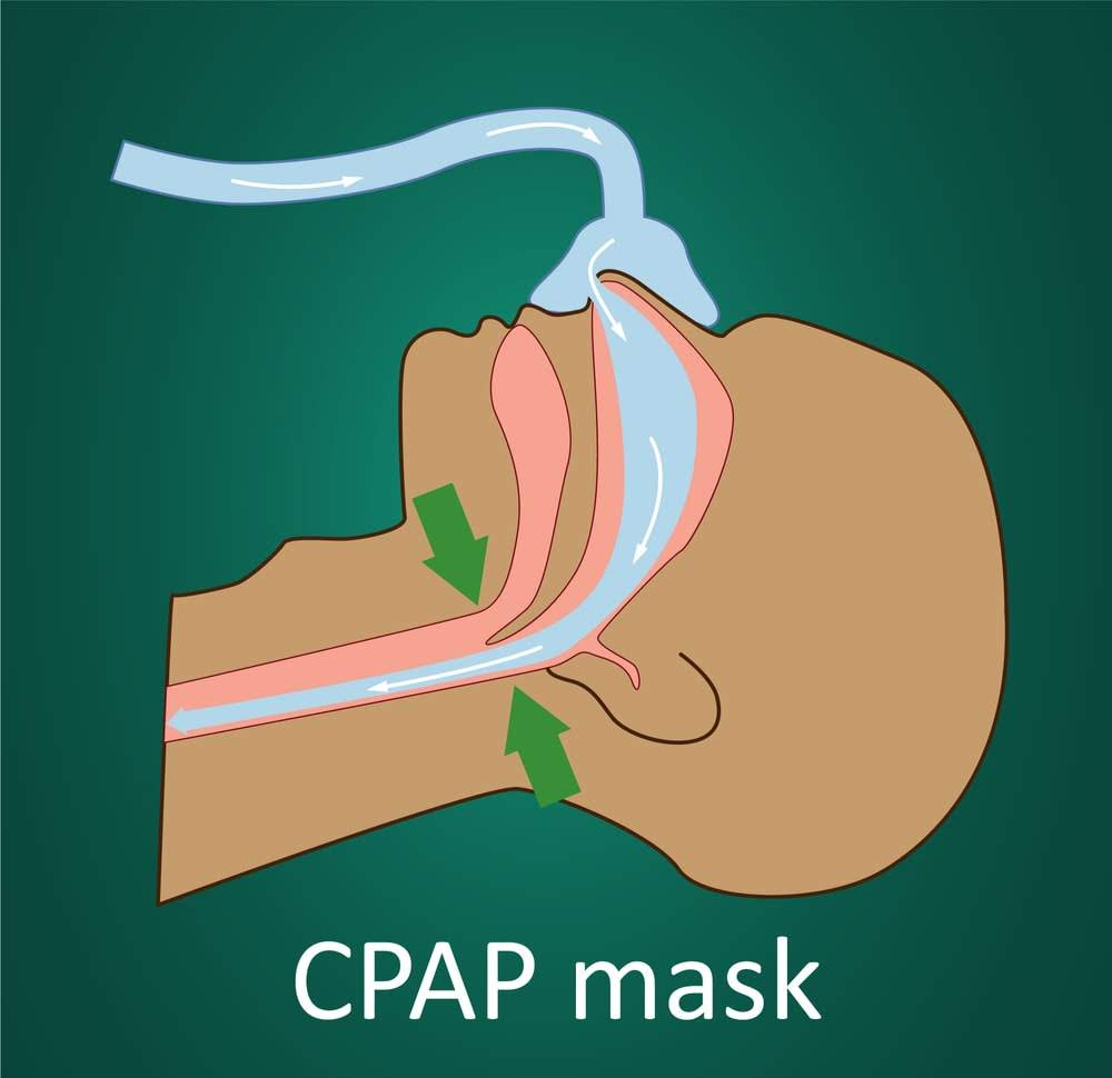 Image showing unoccluded airflow when wearing a continuous positive airway pressure (CPAP) mask