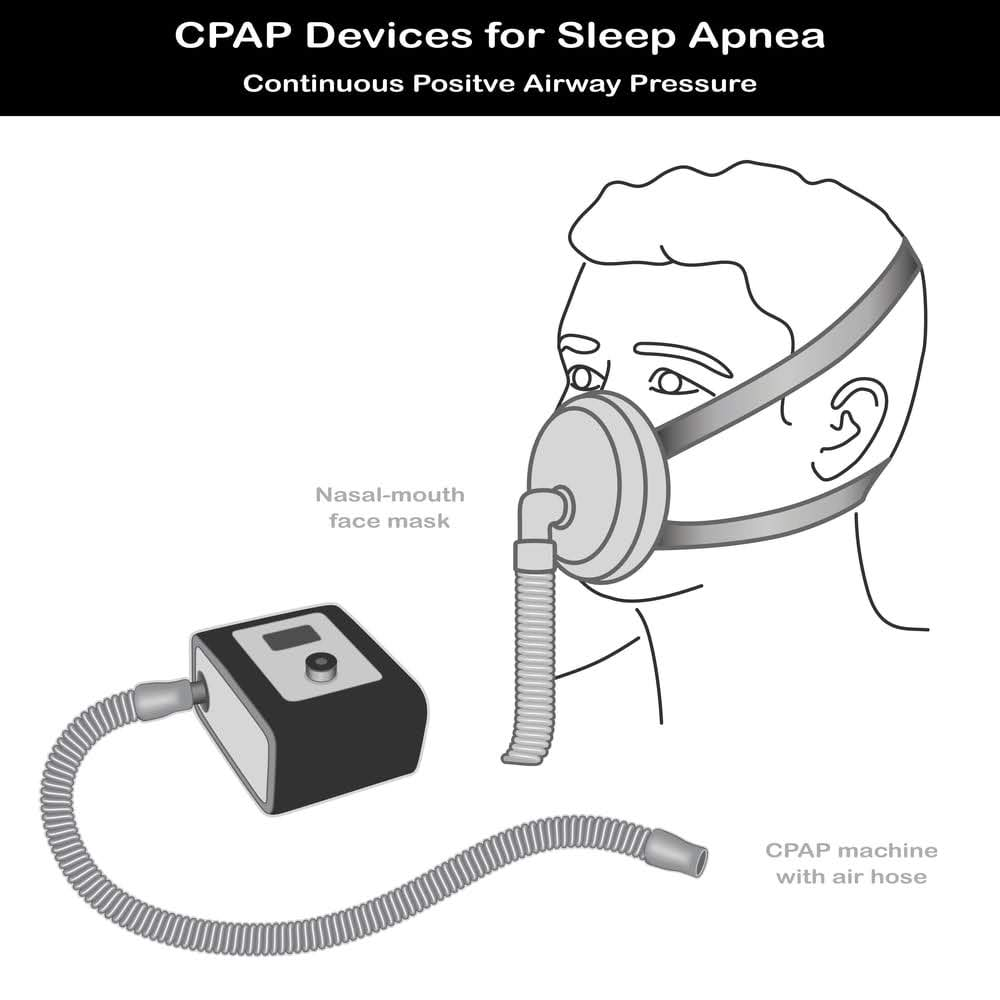 Image of a continuous positive air pressure machine showing nasal-mouth mask and air hose