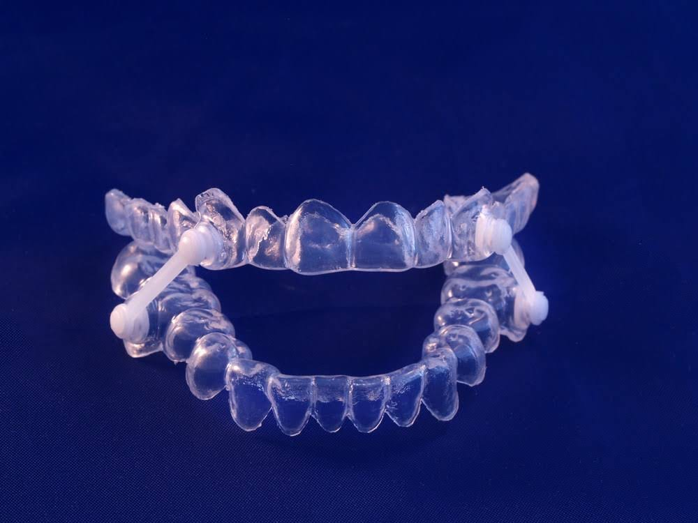 Image of an over-the-counter dental appliance
