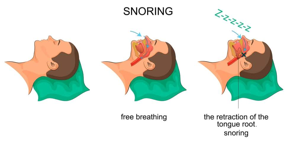 Comparison of the flow of air when breathing freely and when snoring due to the tongue's root retracting