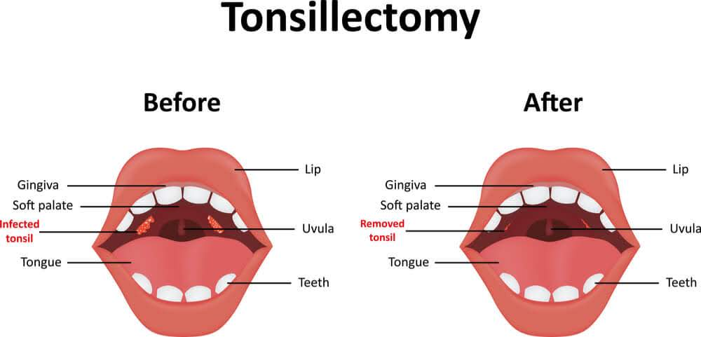 Human mouth anatomy before and after surgical removal of infected tonsils. The image also shows gingiva, uvula, teeth, soft palate, lips and teeth.