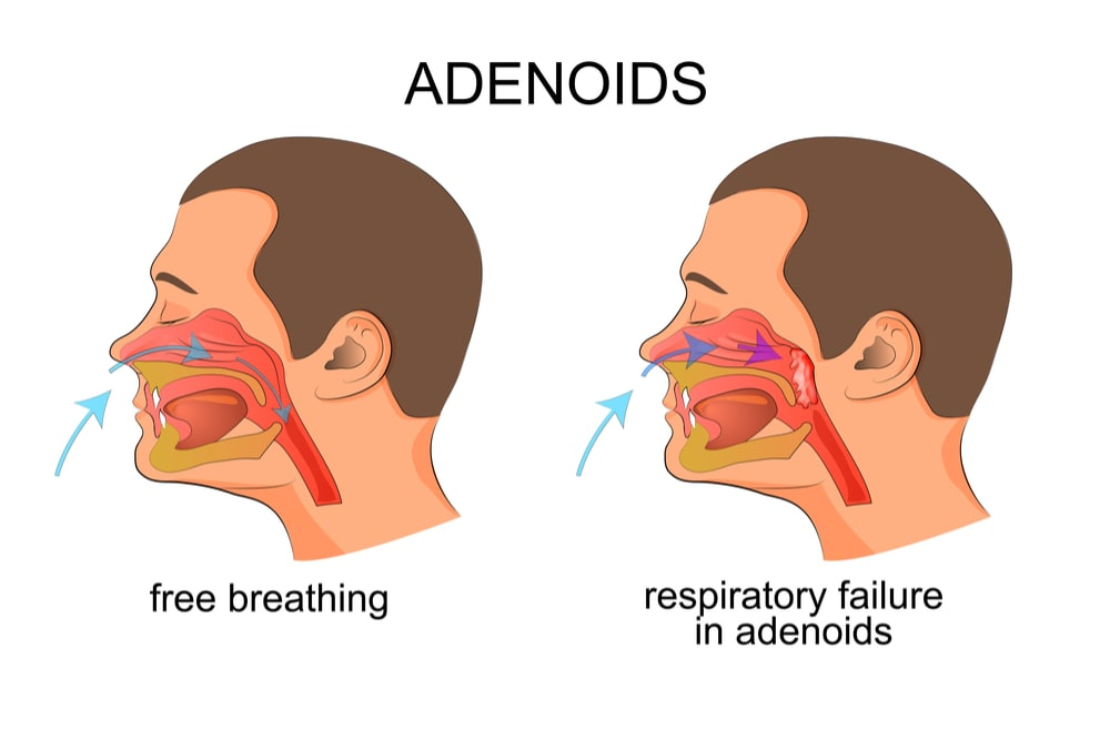 Image of a man breathing freely and then suffering from respiratory failure du to large adenoids