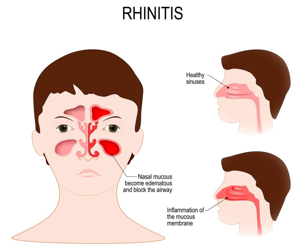 Image comparing healthy versus inflamed sinuses. The inflammation of the mucous membrane and the accumulation of watery fluids block the airways.