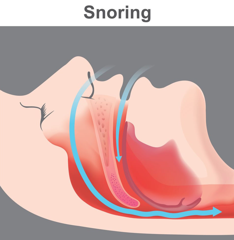 The vibration of partially obstructed respiratory structures during sleep results in snoring
