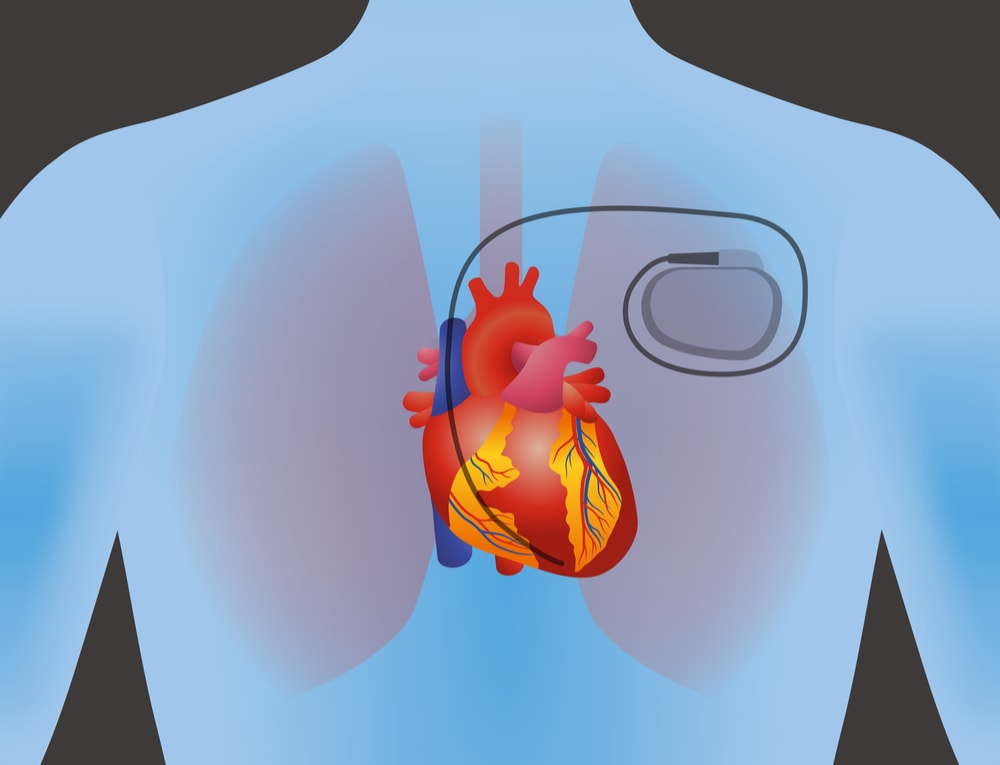 Image showing a heart with an implanted pacemaker