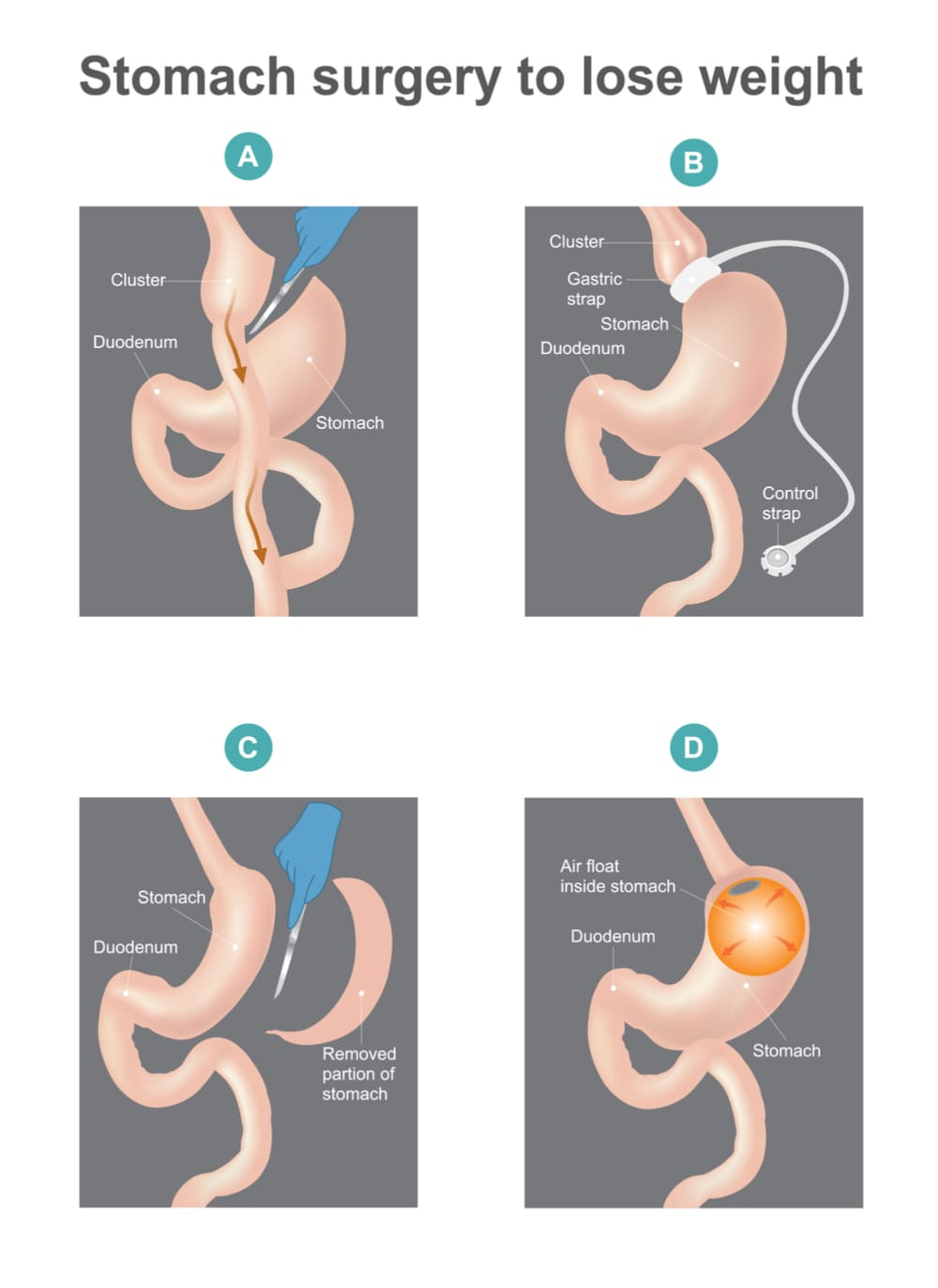 Different types of bariatric surgery procedures including sleeve gastrectomy, adjustable gastric banding, etc..