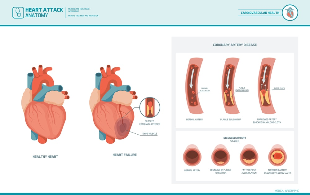 Heart attack, atherosclerosis: healthy, damaged heart, blood vessel section with fatty deposit, narrowing, and final blockage due to blood clot.