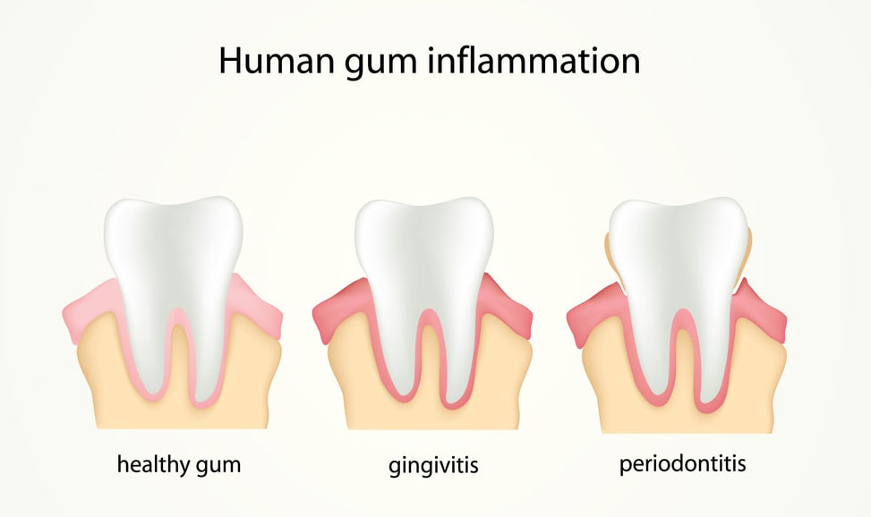 Different stages of human gum inflammation: healthy gum, gingivitis, periodontitis.