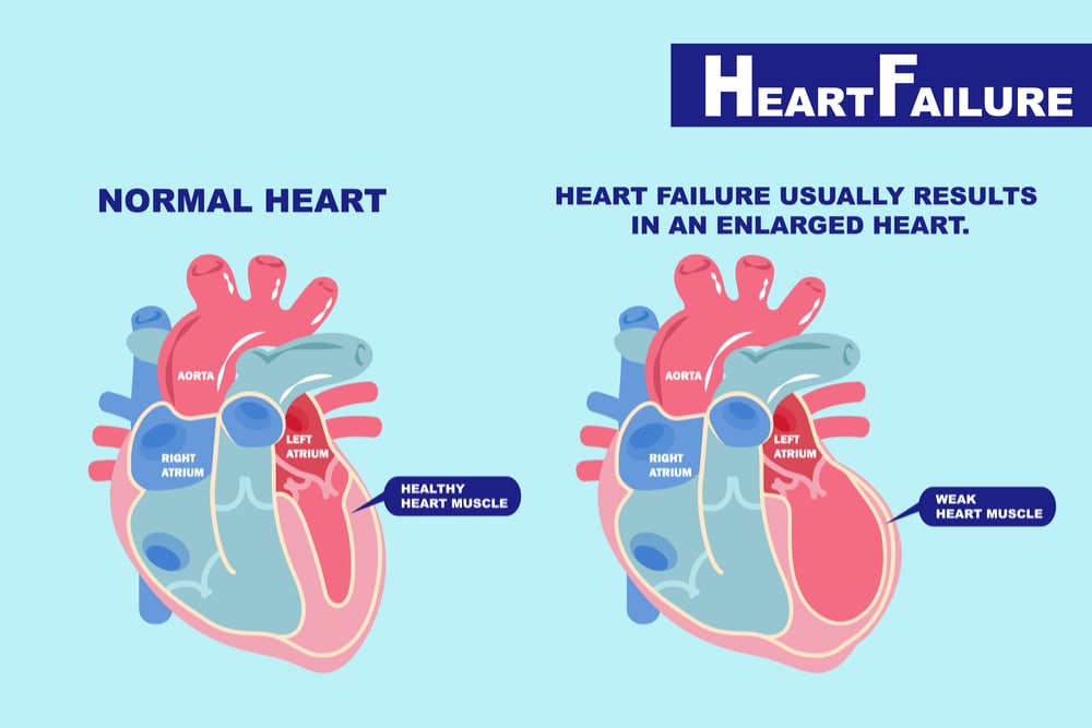 Image comparing a normal heart with healthy muscle to an enlarged heart with a weak muscle and thus prone to failure
