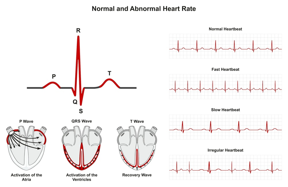Normal and abnormal heart rates: activation of atria ventricle recovery wave; chart of normal, fast, slow, irregular heartbeats