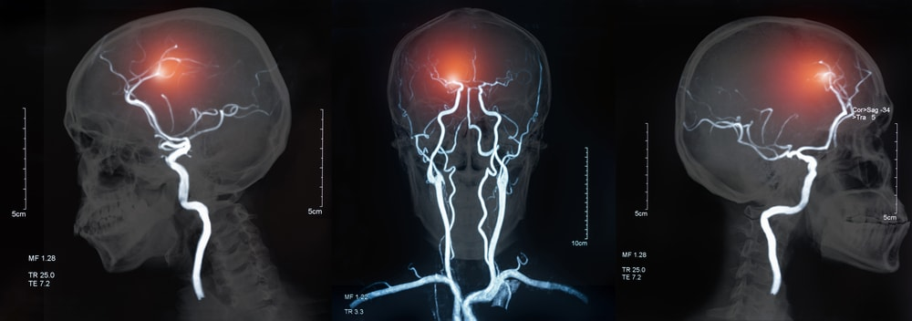 Image of the blood vessels in the brain - cerebrovascular disease or hemorrhagic stroke.