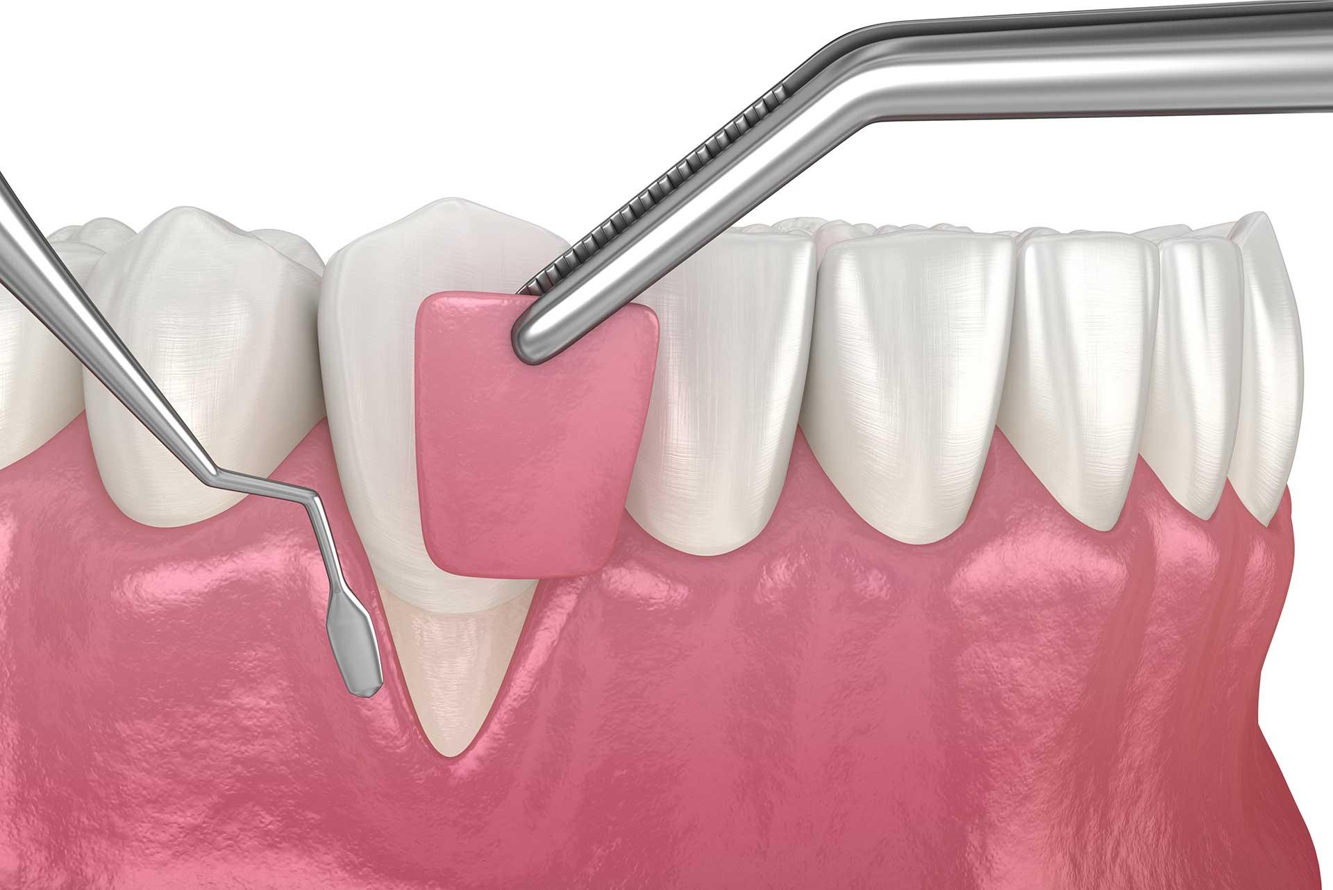 Advanced periodontal disease: gum graft and gum disease surgery