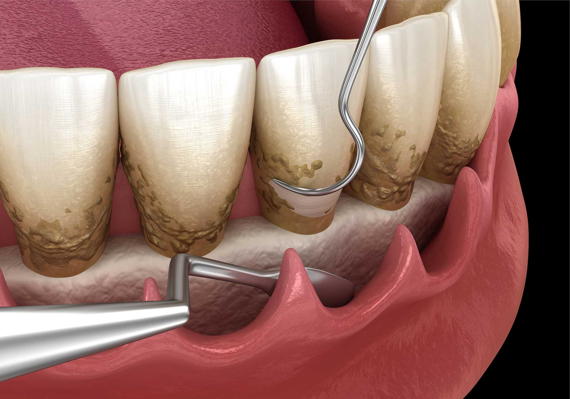 Dental deep cleaning: scaling and root planing in Mid-town East, New York