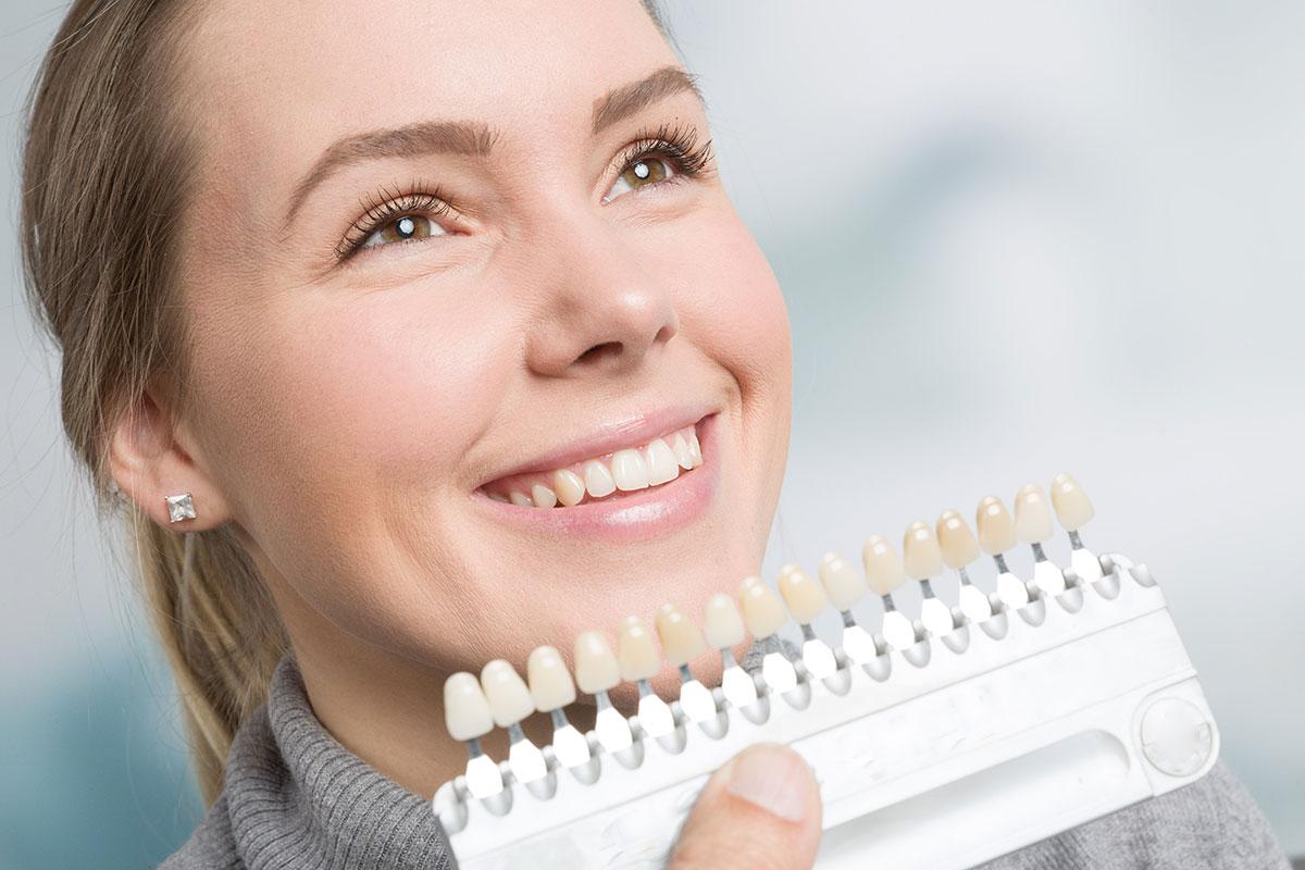 Teeth Whitening Chart