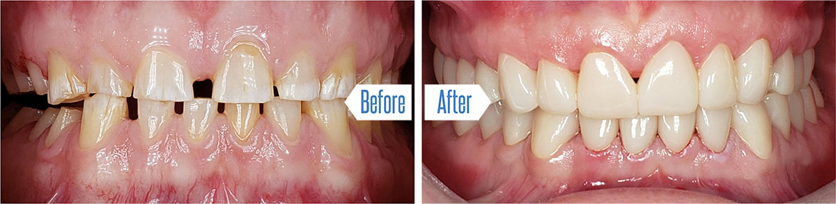 Porcelain Veneers: Before and After